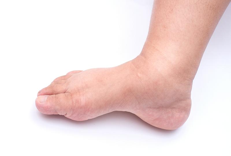 láb ödéma magas vérnyomás szerves savak és magas vérnyomás