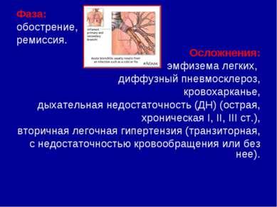 eukaliptusz és magas vérnyomás