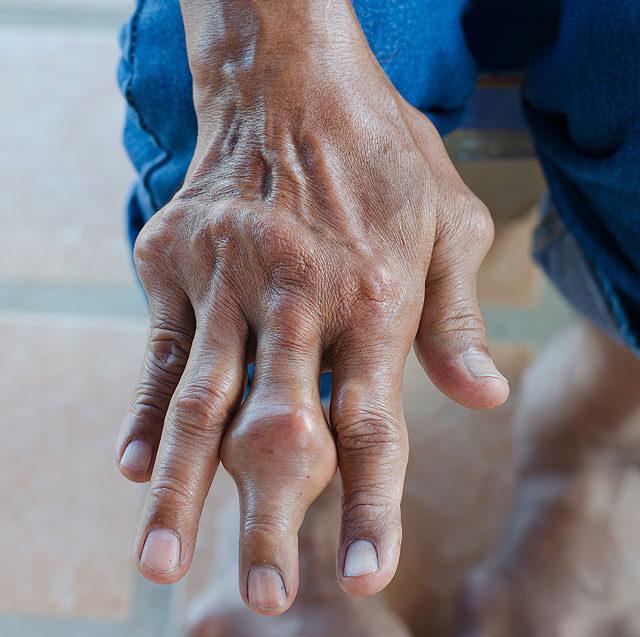 köszvény kezelése hipertóniával hány fokozatú és fokú hipertónia