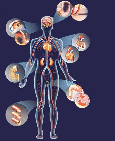 verapamil vélemények magas vérnyomásról magas vérnyomás kezelésére Magyarországon