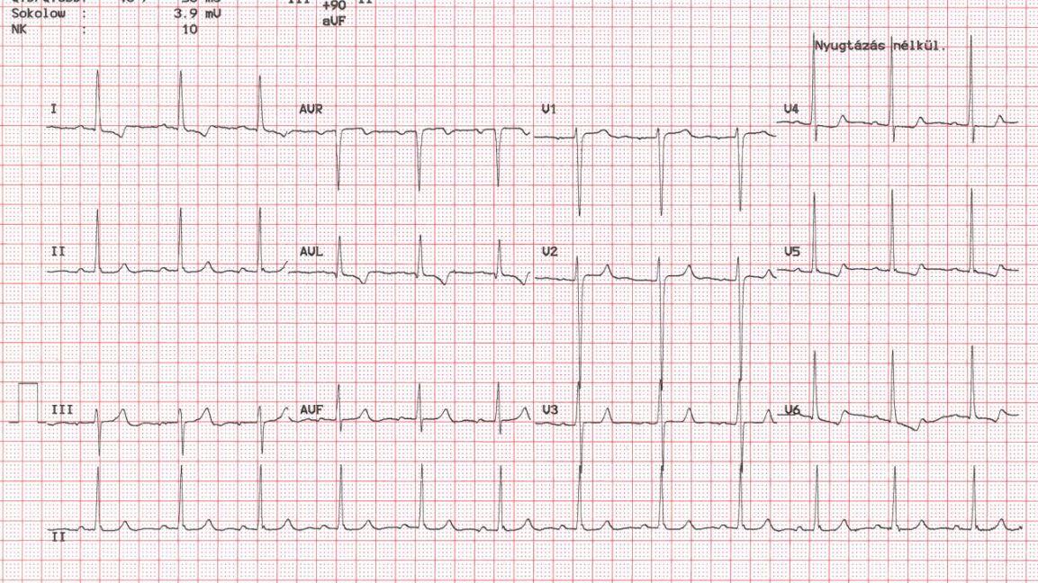 Egy amatőr sportolónak van-e szüksége pulzuskontrollra?