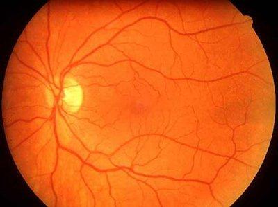 a szem artériák hipertóniája szűkül