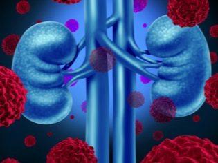 magas vérnyomás és mcb 10 szteroidokból származó magas vérnyomás