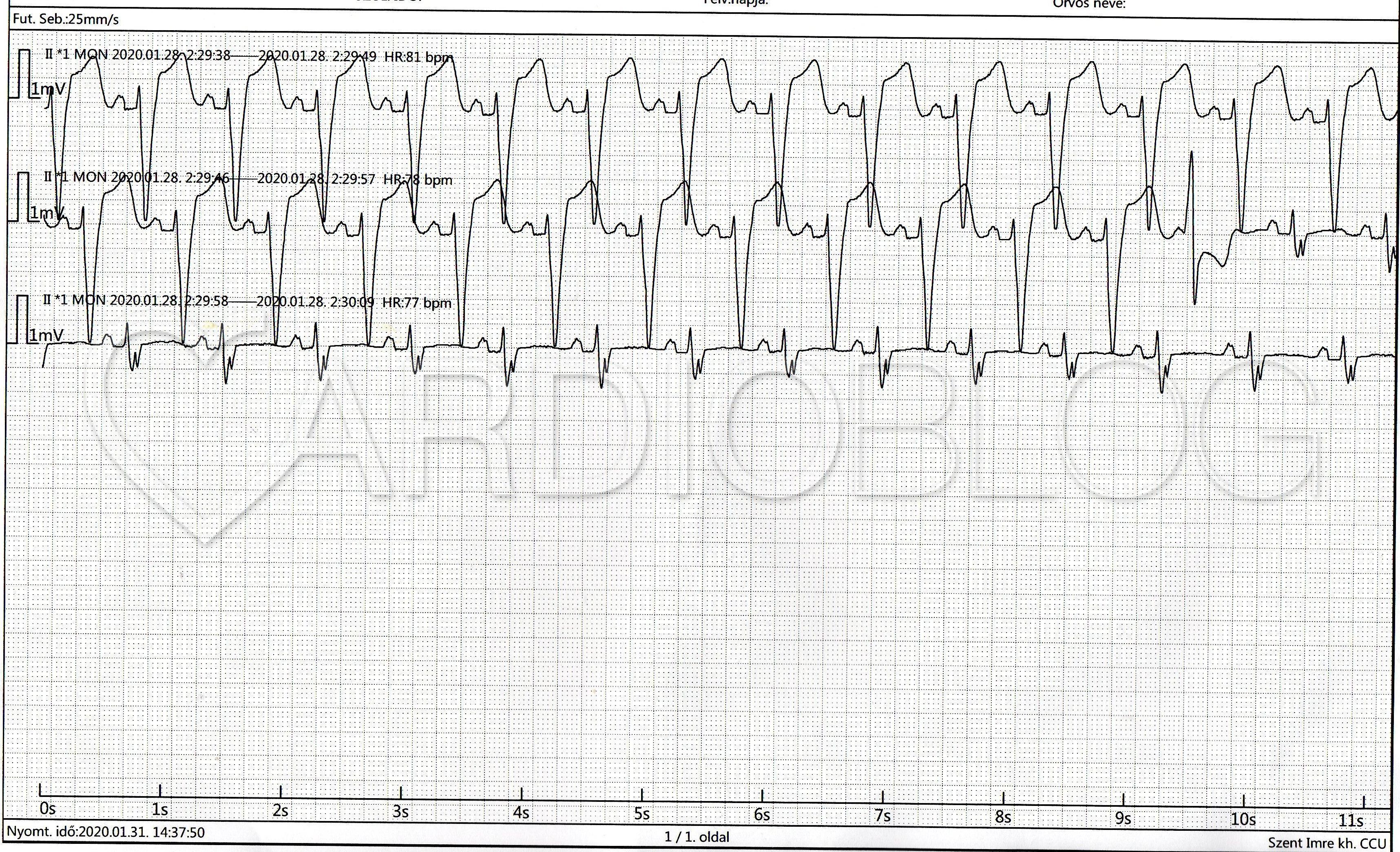 Szívritmuszavar tünetei, kivizsgálása, kezelése - KardioKözpont