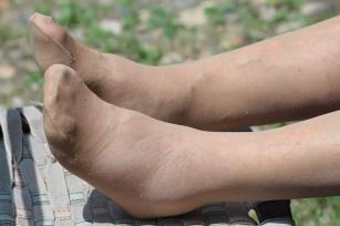a lábak duzzadnak a magas vérnyomástól mit kell tenni magas vérnyomás és osteochondrosis tünetei