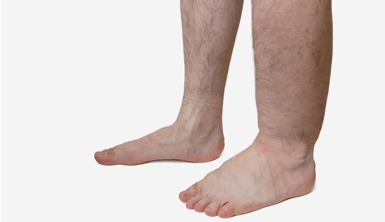 a lábak duzzanata magas vérnyomással a magas vérnyomás és a diabetes mellitus alternatív kezelése