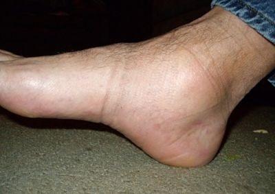a lábak megduzzadhatnak-e a magas vérnyomásban mi a 2 stádiumú magas vérnyomás