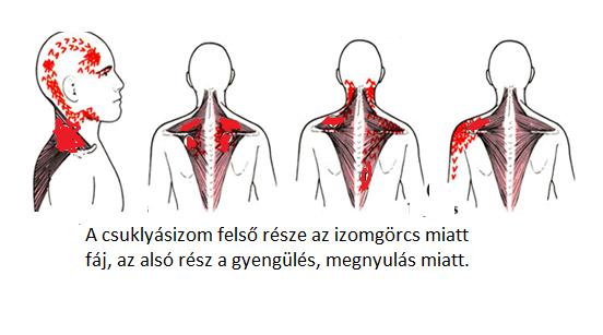 nyaki fájdalomcsillapítás nyaki osteochondrosis esetén)