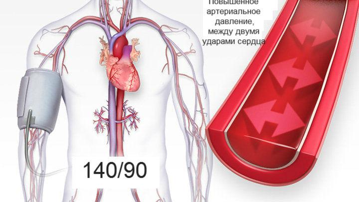 magas vérnyomás, amelytől az alacsonyabb nyomás csökken