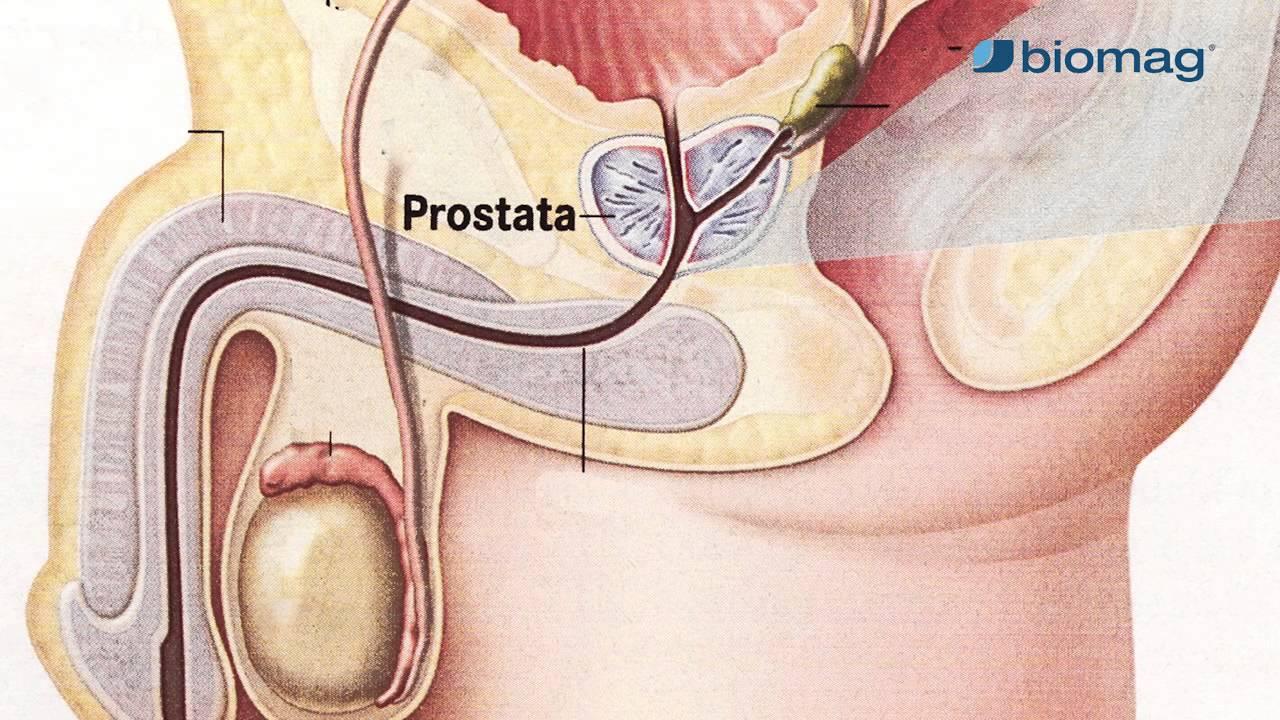 prosztata hipertónia