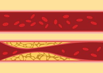 a magas vérnyomás hatása egy személyre