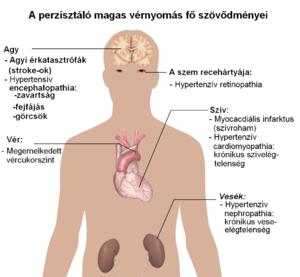 hipertónia nyomásértéke osteochondrosis hipertóniás kapcsolat