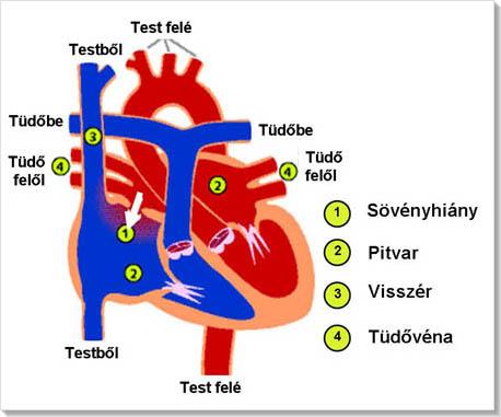 magas vérnyomás szívhibákkal magas vérnyomás és mcb 10