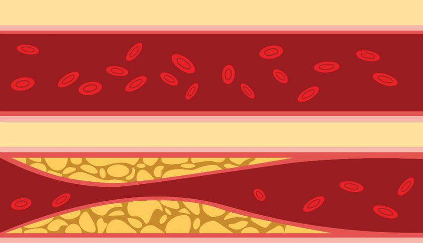 mi a magas vérnyomás szakasza