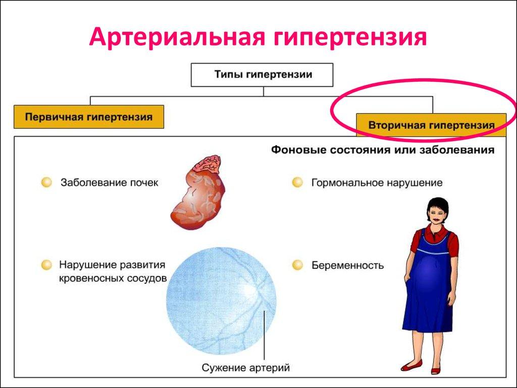 toraszemid magas vérnyomás esetén