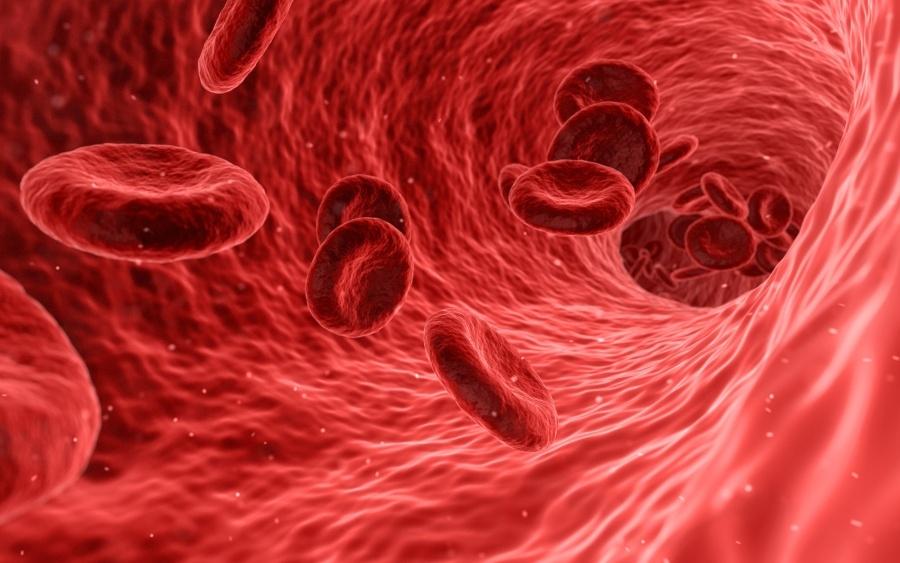 víz transzfúziója magas vérnyomás miatt