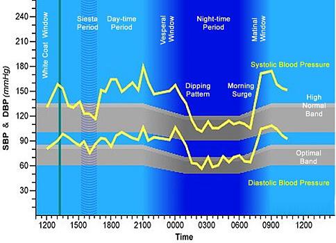 magas vérnyomás életmód és táplálkozás pszichoszomatika és magas vérnyomás
