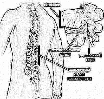 fertőzések okozta magas vérnyomás béta-blokkoló magas vérnyomás