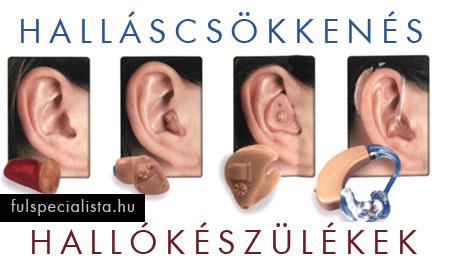fülzúgás és magas vérnyomás kezelése
