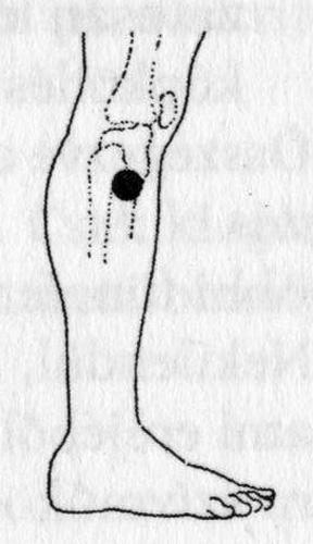 Akupresszura by Francsi - Issuu - Akupresszúra hipertóniás képekhez