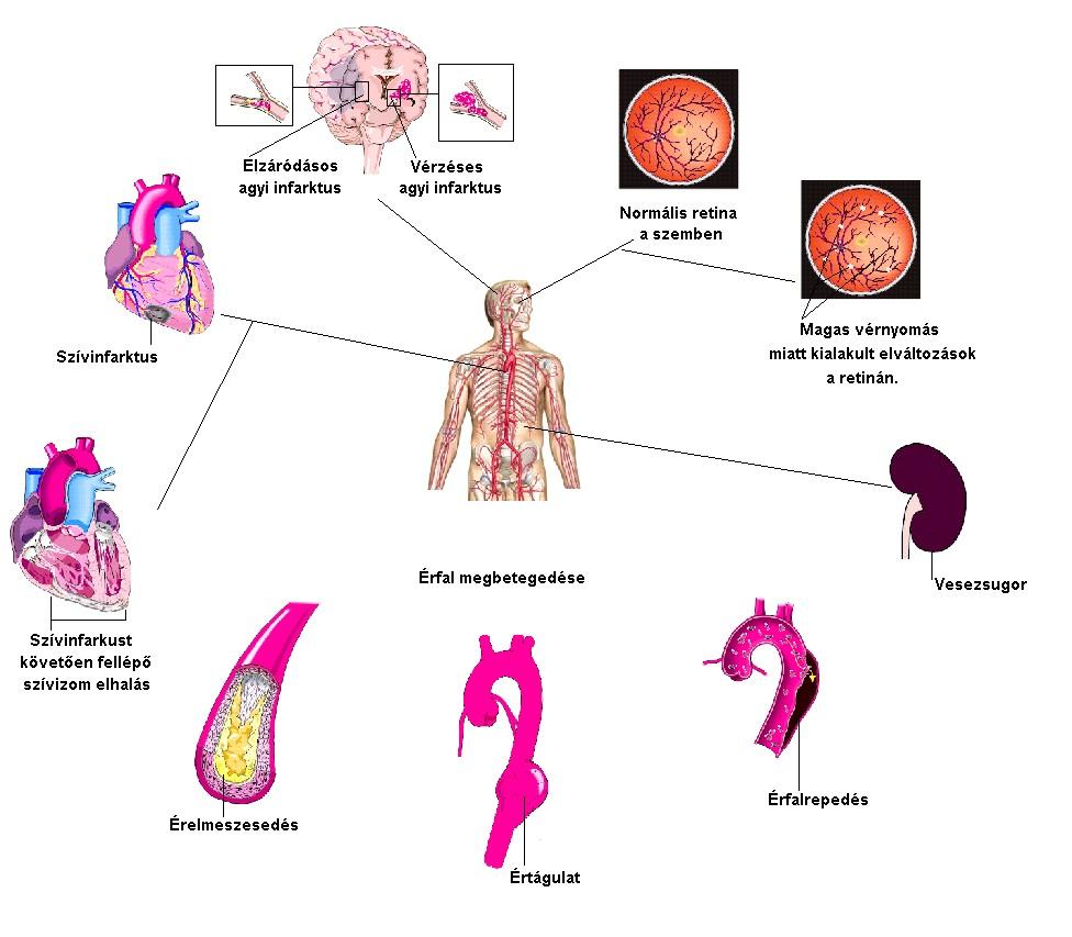 a magas vérnyomás okai és tünetei