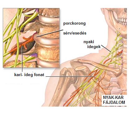 magas vérnyomás diagnosztikai módszerek infúziók magas vérnyomás esetén